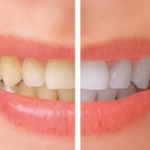 Clinton Dentistry Practice Talks About The Biggest Teeth Whitening Myths